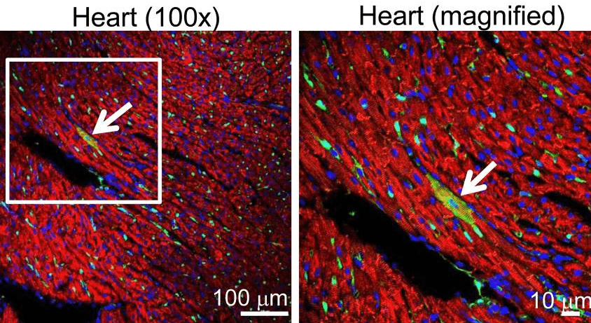 A Study That Changed the Direction of Cardiac Stem Cell Research