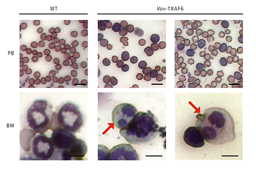 TRAF6 Role Extends Beyond MDS to Affect Innate Immune Signaling