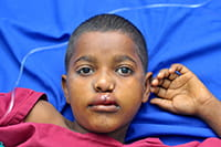 sudan-boy-after-200.jpg