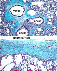 image of pleural surface.
