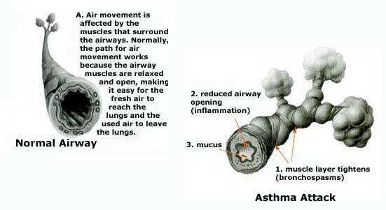 Normal airways and airways with bronchospasms.