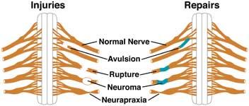 Brachial Plexus Injury   Symptoms, Treatment & Surgery