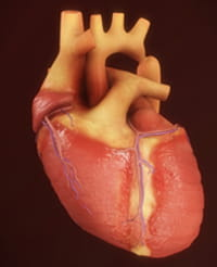 Coarctation of the aorta.