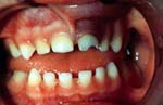Oral injuries like this one can be avoided.