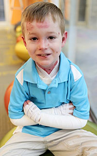 Boy with epidermolysis bullosa.