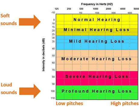 Chart for hearing loss evaluation.