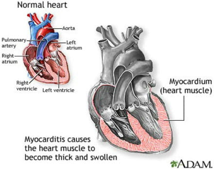 Viral-myocarditis