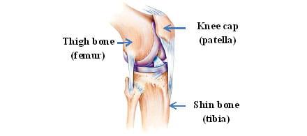 Patella-Femoral Dysfunction or Patellofemoral Pain Syndrome