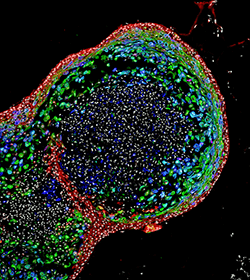 A microscopic image of a bioengineered human esophageal organoid.
