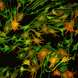 An image of Schwann cells and myelin proteins.