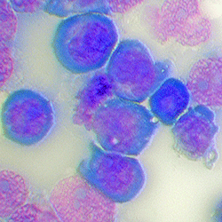 Leukemia cells used to identify potential treatment targets for acute myeloid leukemia (AML).