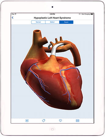 Heartpedia Mobile App.
