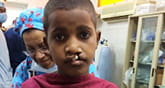 Craniofacial team helps children with cleft palate, small jaw and other facial anomolies.