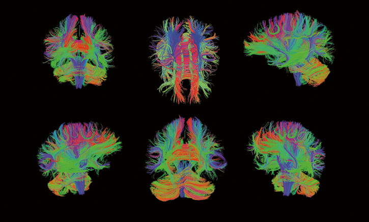 artificial color images of white matter tracks in the brain.