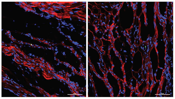 confocal microscope images heart tissue.