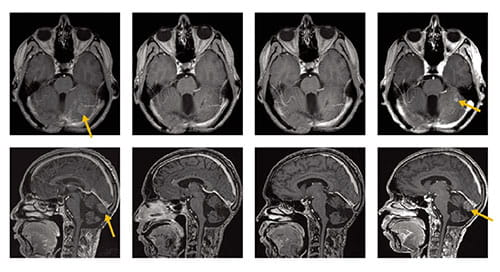 Fig A: These magnetic resonance images show responses in two patients with recurrent sonic hedgehog–subgroup medullo-blastoma (MB) treated with vismodegib. Images were obtained at the start of therapy and at 2, 4, and 6 months after. Gold arrows indicate recurrent lesions. After initial response, MB recurs locally.