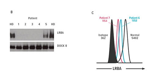Fig. B-C. Immunoblotting for patients 1 to 5 and (C) flow cytometry for patients 6 and 7 show loss of LRBA compared with a healthy donor (HD). DOCK8 is included as a loading control.