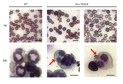 These images show peripheral blood (PB) smears and bone marrow (BM) cytospins from wild type mice (WT) and mice overexpressing TRAF6. Arrows indicate dysplastic myeloid cells with Pseudo-Pelger Hüet anomaly.