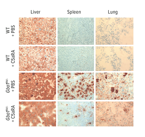 These tissue samples from mouse models of Gaucher disease show that C5aR-targeting provides significant reductions in glucosylceramide accumulation and inflammation.