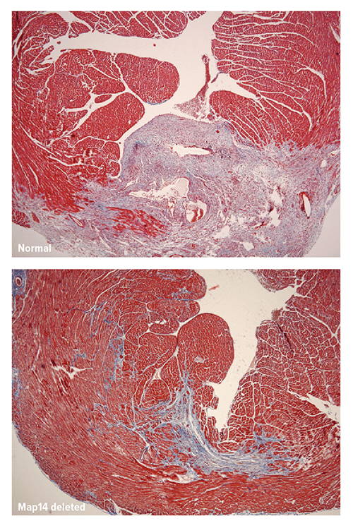 These histological images, generated at 28 days post-ischemic injury, show markedly reduced fibrosis in mice with the deleted gene (bottom). Blue staining indicates fibrosis.