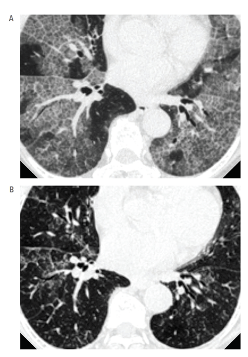 The high-resolution computed tomographic images of the chest show before (A) and after (B) treatment with inhaled granulocyte/macrophage–colony stimulating factor (GM-CSF) therapy for 24 weeks.