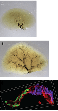 Three images related to liver regeneration.