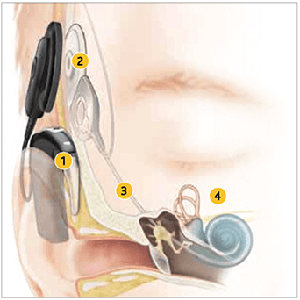 An image showing how a cochlear implant works.