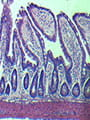 Microscopic image of mouse intestines.