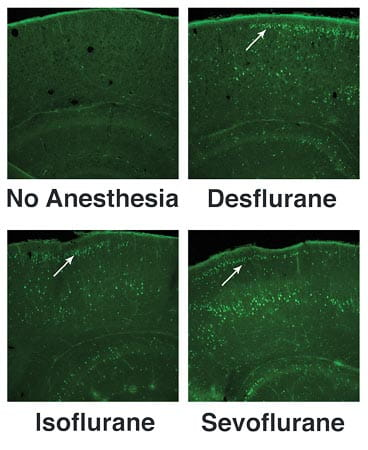 A six-hour exposure to Desflurane, Isoflurane or Sevoflurane increases apoptotic cell death in neonatal mice, compared with fasted, unanesthetized littermates (no anesthesia).