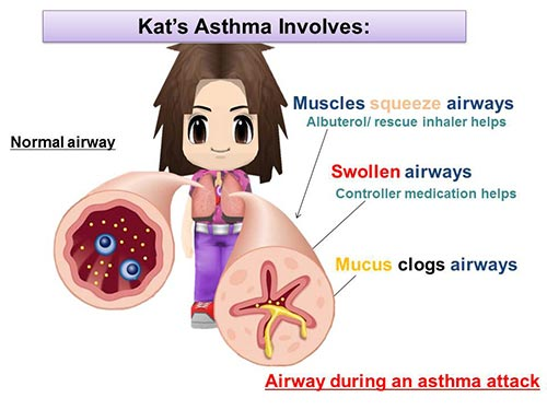Tailored Video Discharge Instructions For Acute Pediatric Asthmatics