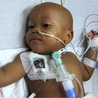 Prematurity leads to many complications.