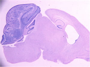 Medulloblastoma formation in the mouse cerebellum.