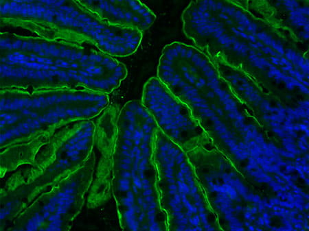 Figure 2 - Apical Sodium Bile acid Transporter (ASBT) staining of the terminal ileum sections with ASBT antibody (green fluorescence). Stained area was significantly larger in VSG compared to Sham-operated mice.