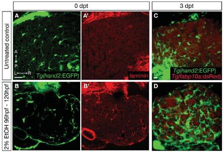 Hepatic Stellate Cells | Yin Lab