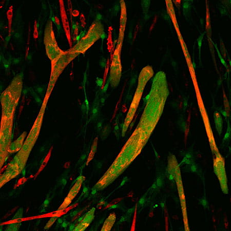 Expression of myomaker in fibroblasts (green) induces fusion with myoblasts (red) resulting in yellow/orange chimeric myotubes.