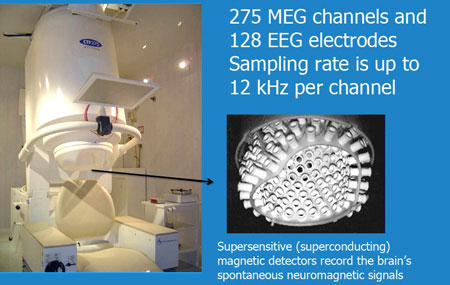 275 MEG channels and 128 EEG electrodes. Sampling rate is up to 12 kHz per channel. Supersensitive (superconducting) magnetic detectors record the brain's spontaneous neuromagnetic signals.