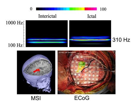 Spectrograms, magnetic source imaging (MSI) and intracranial recordings from a patient show the frequency and spatial features of interictal and ictal high-frequency brain signals (HFBS).