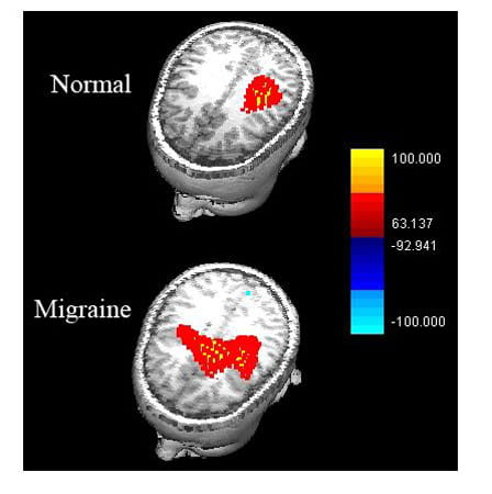 MEG results combined with MR images: normal versus migraine.