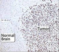 Immunohistochemical staining showing high expression of active AMP kinase in a brain tumor.