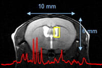 Proton spectroscopy of germinal zones of mouse brain.