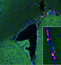 Proliferation of stem cells in the germinal zone of brain in an old mouse.