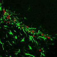 Proliferating cells in the brain of an old mouse expressing stem cell and glial markers.