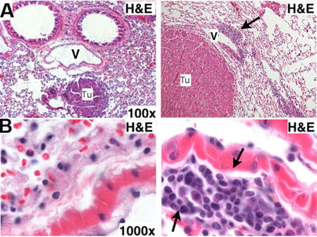 Increased perivascular leukocyte infiltration is associated with increased tumor sizes in enFoxm1−/− mice.