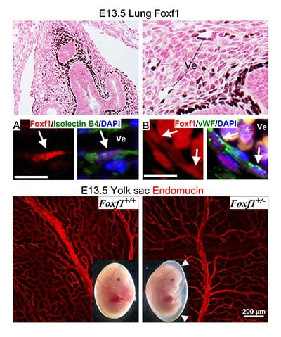 Foxf1 transcription factor is expressed in pulmonary mesenchyme and endothelial cells. Foxf1 deficiency disrupts formation of the capillary network in mouse embryos.