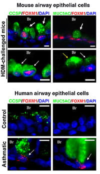 Foxm1 transcription factor is expressed in subsets of airway Clara cells and goblet cells of patients with severe asthma as well as lungs of mice with experimental asthma.