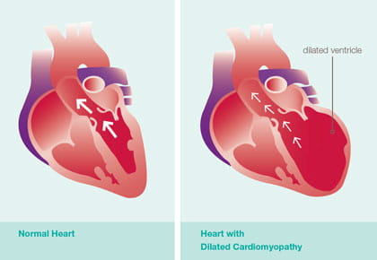 Dilated Cardiomyopathy illustration.