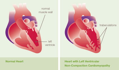 Left Ventricular Non-Compaction Cardiomyopathy (LVNC) illustration.