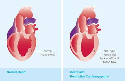 An illustration showing restrictive cardiomyopathy.