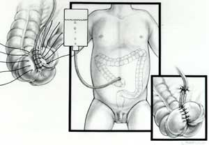 Appendicostomy illustration: The appendix is connected to the belly button so a tube can be passed through it for the enema administration.