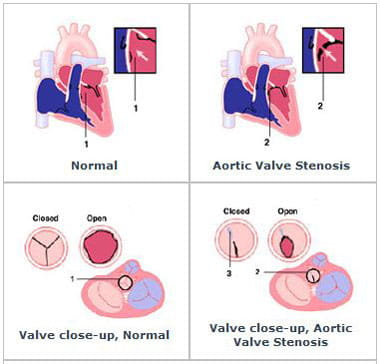 An illustration of aortic stenosis.
